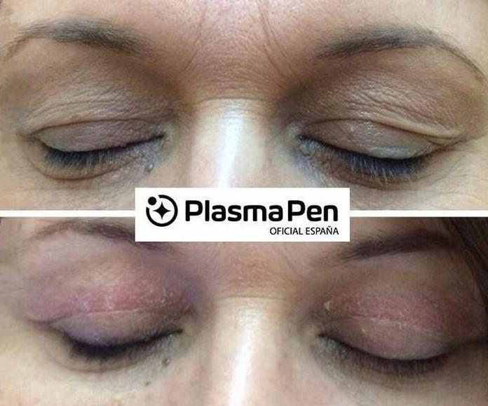 Plasma Pen : Nuestros servicios y fotos de Gemma Beauty Bar