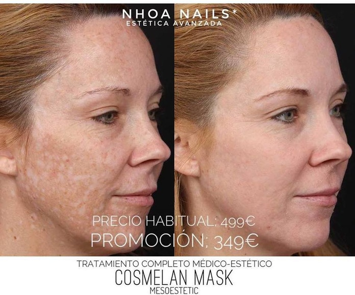Cosmelan Mask ( tratamiento despigmentante médico-estético ): Products de Nhoa Nails*