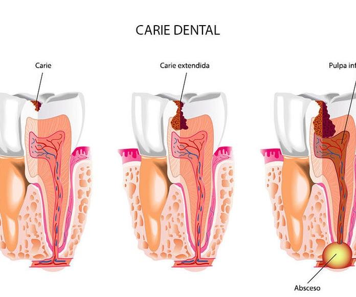 Odontología general: Tratamientos de Clínica Dental García Villagrá