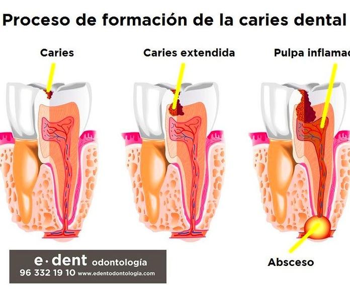 Clínica dental Valencia