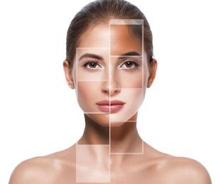 Tractaments facials
