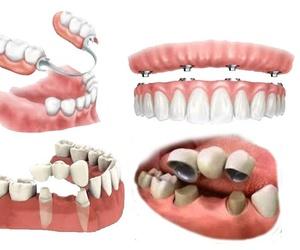 Rehabilitación oral