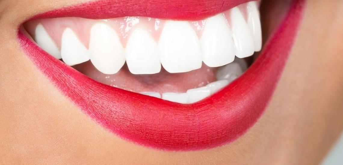 Ortodoncia y blanqueamiento dental en Galapagar con precios ventajosos