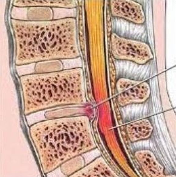 Hernia posterior en zona lumbar