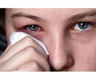 Blefaritis - Conjuntivitis alérgica