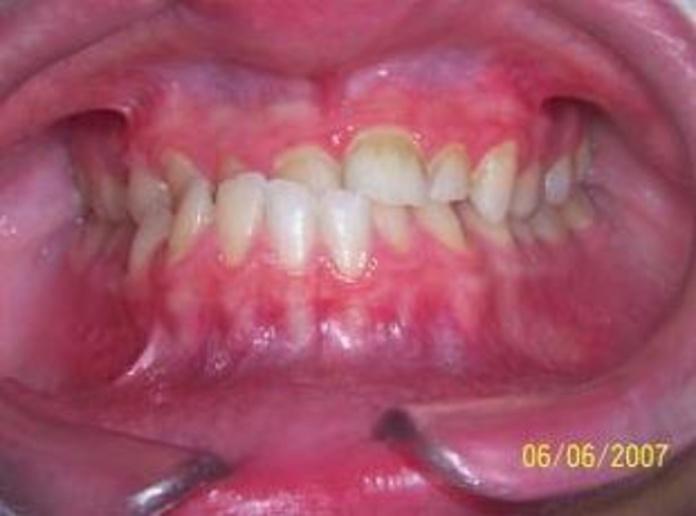 Ortodoncia adolescentes: Tratamientos de Clínica Dental Francisco Javier García Jerónimo