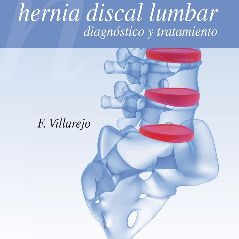 Hernia discal lumbar: diagnóstico y tratamiento: Especialidades y publicaciones de Doctor Villarejo