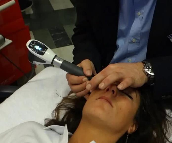 Tratamiento de las arrugas mediante ondas de choque