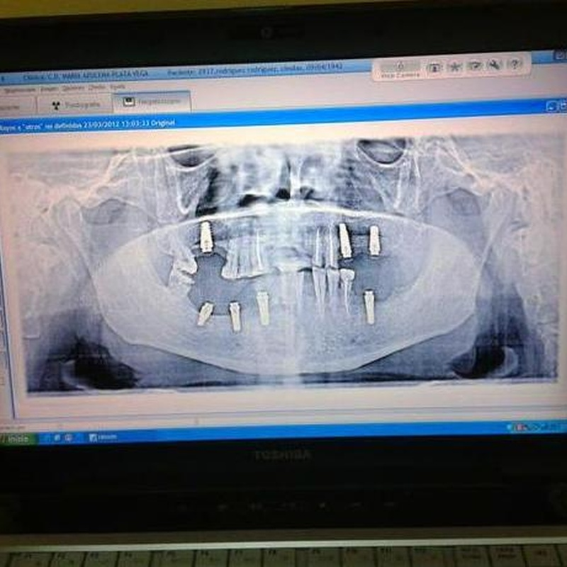 Panorex dental: Servicios de Centro Dental Integral Mª Azucena Plata Vega