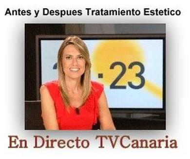 En directo TV tratamientos.