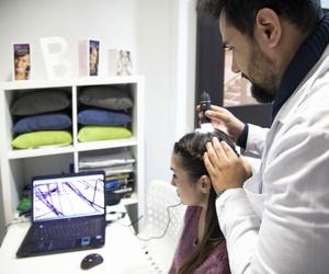 Estudios de la caída del cabello en Barcelona