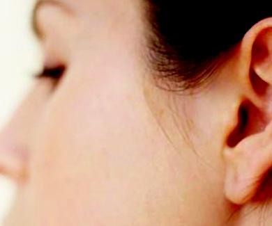 Fin a las orejas de soplillo sin quirófano
