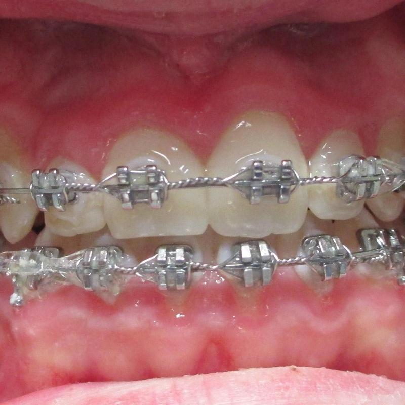 Ortodoncia: Tratamientos de Clinica Dental Elisa Ravojc