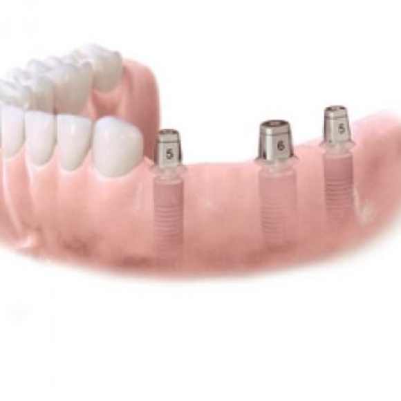 Puente de varias piezas: Tratamientos dentales de Clínica Dental Dres. Nuñez García
