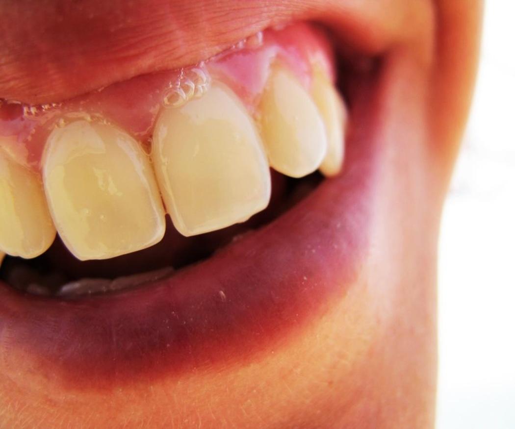 Las ventajas de cada ortodoncia