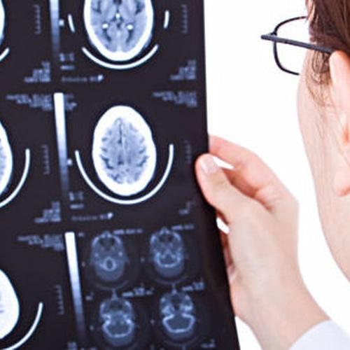 Neurofisiología Clínica