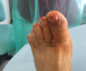 Cirugía podológica