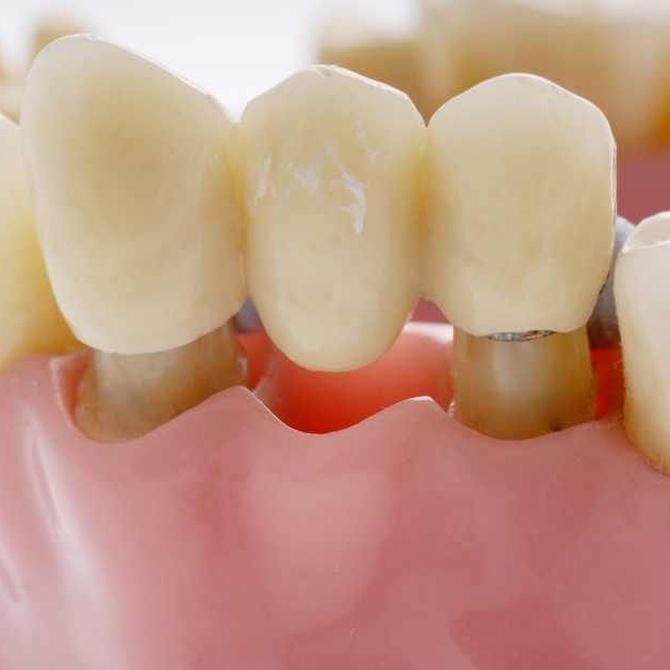 ¿Por qué hacerme una prótesis dental?