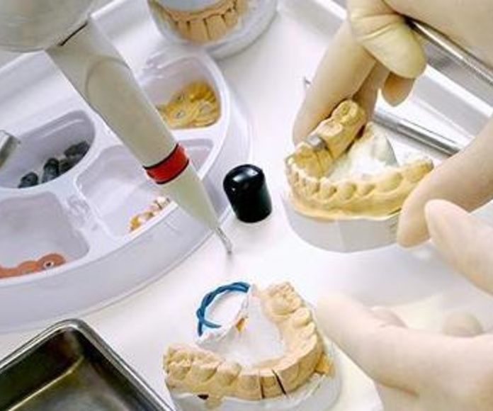 prótesis dentales en Bargas - Toledo