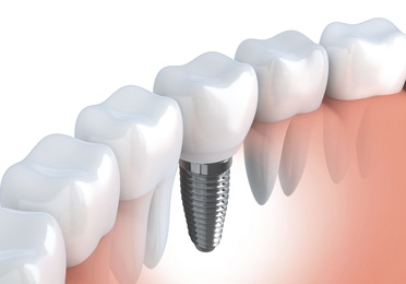 Implant dental