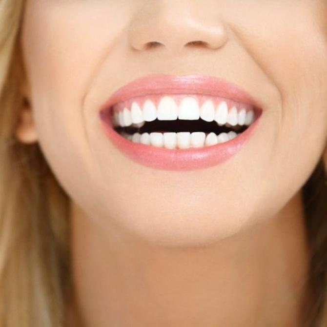 ¿Qué sucede tras retirar la ortodoncia?
