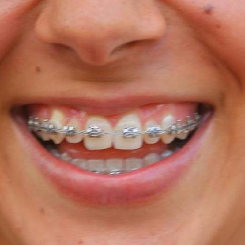 Ortodoncia: Tratamientos de Lucía González Botana