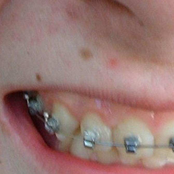 Consejos durante el tratamiento de ortodoncia