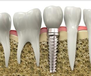 Conoce el origen de los implantes dentales