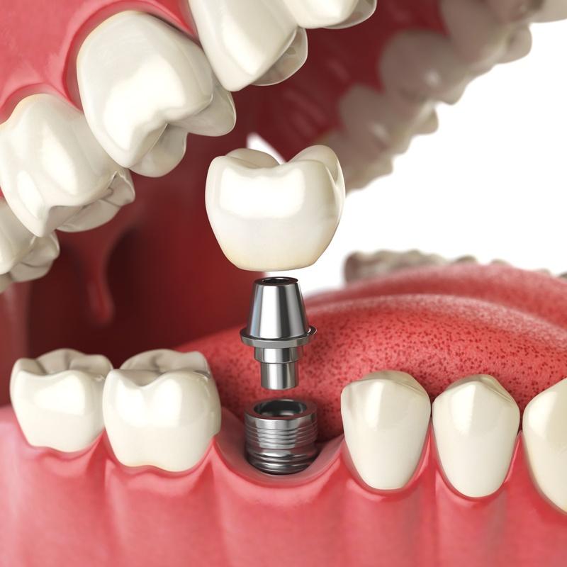 Implantes dentales: Servicios dentales de Clínica Dental Aliseda
