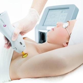 Información de la depilación laser