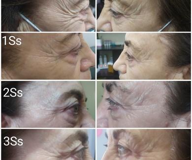 Tratamiento antiarrugas VAKUUM