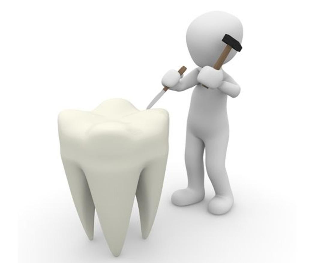 Qué son los empastes dentales