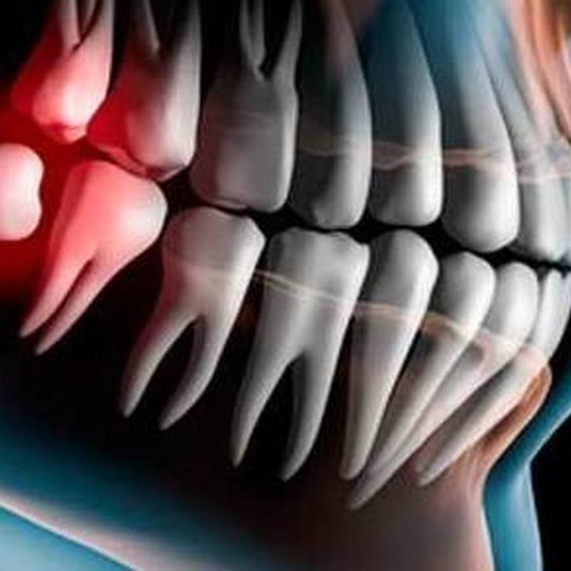 CIRUGÍA ORAL: Tratamientos de Clínica dental tres D