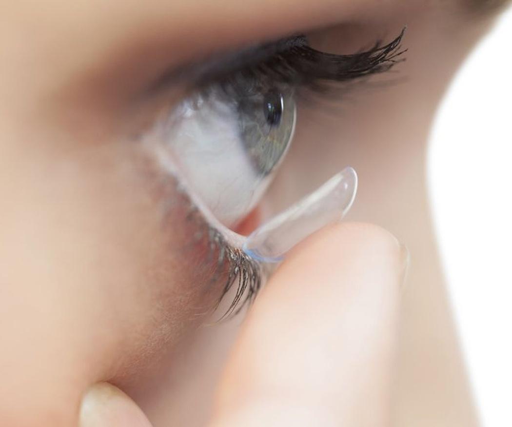 Qué es el tratamiento de ortoqueratología
