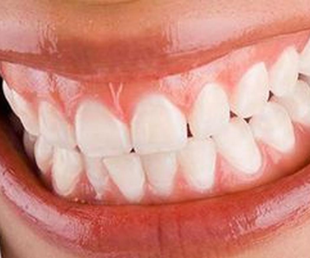 Recomendaciones para cuidar la estética dental