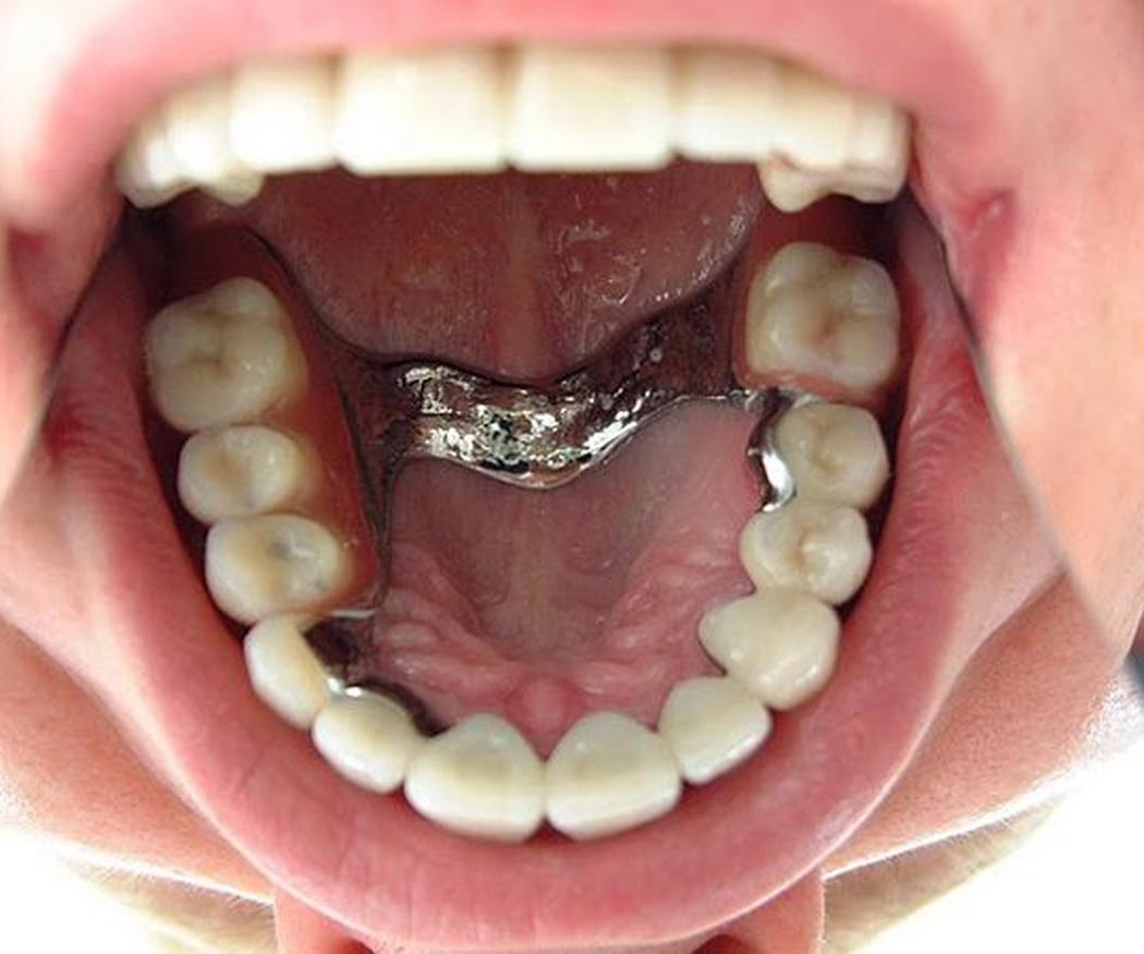 Implantes: funcionalidad y estética