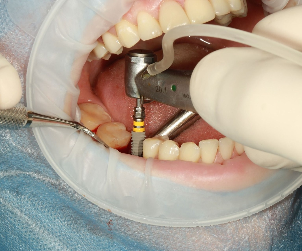 Las ventajas de los implantes dentales