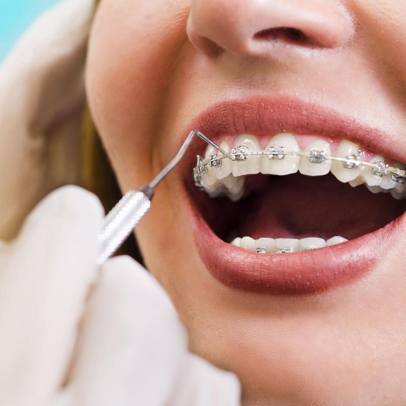 Ortodoncia en adultos: Tratamientos de Centro Médico Dental Capitol