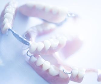 Blanqueamiento dental: Tratamientos de Centro Médico Dental Capitol