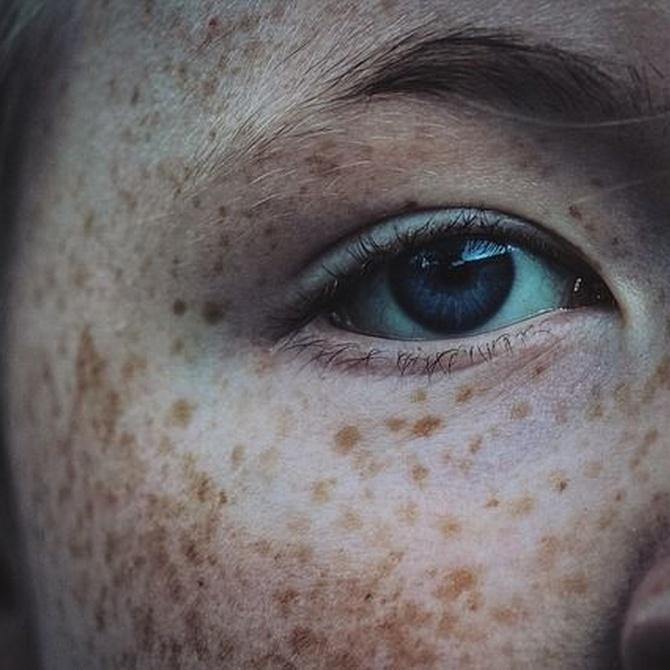 Tipos de verrugas