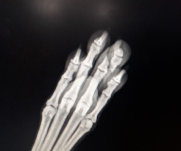 Fractura de un dedo.