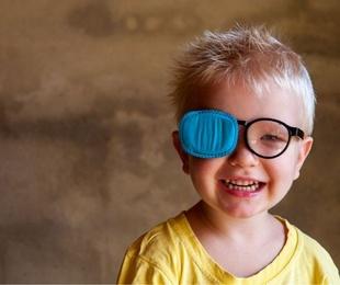 Lo que quieres saber acerca del ojo vago