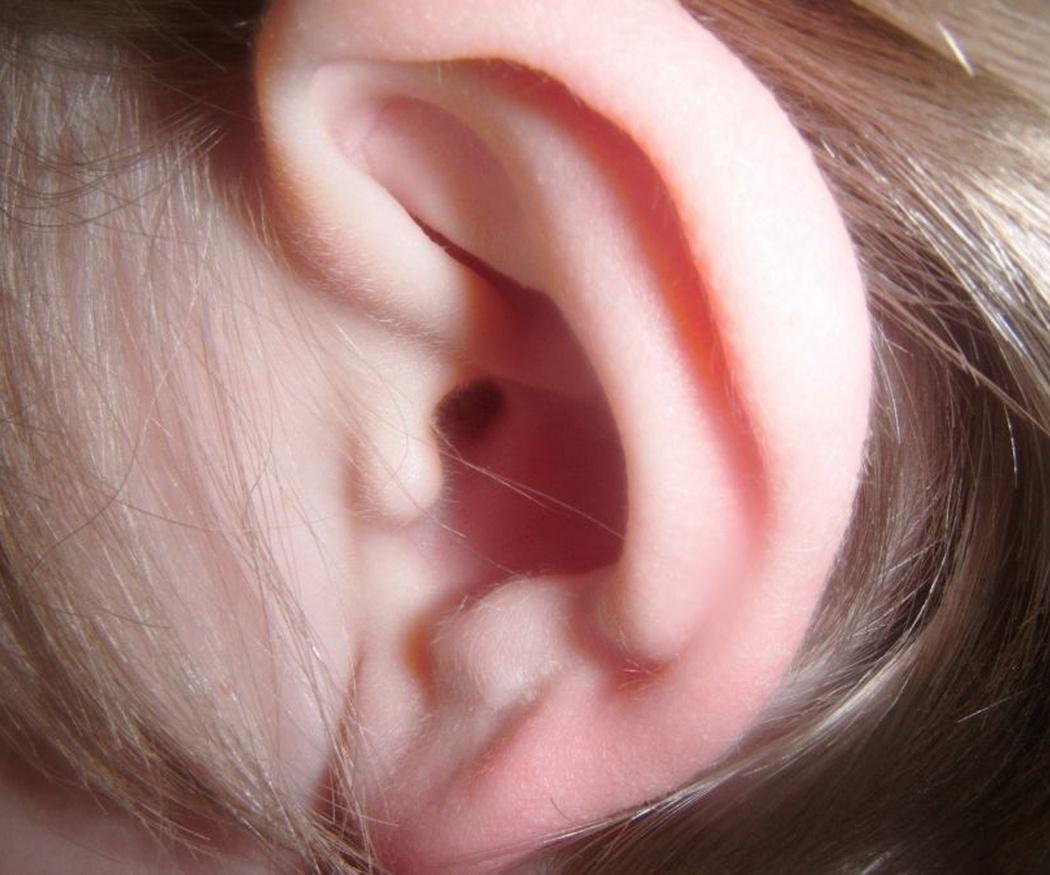 La relación del vértigo con el oído