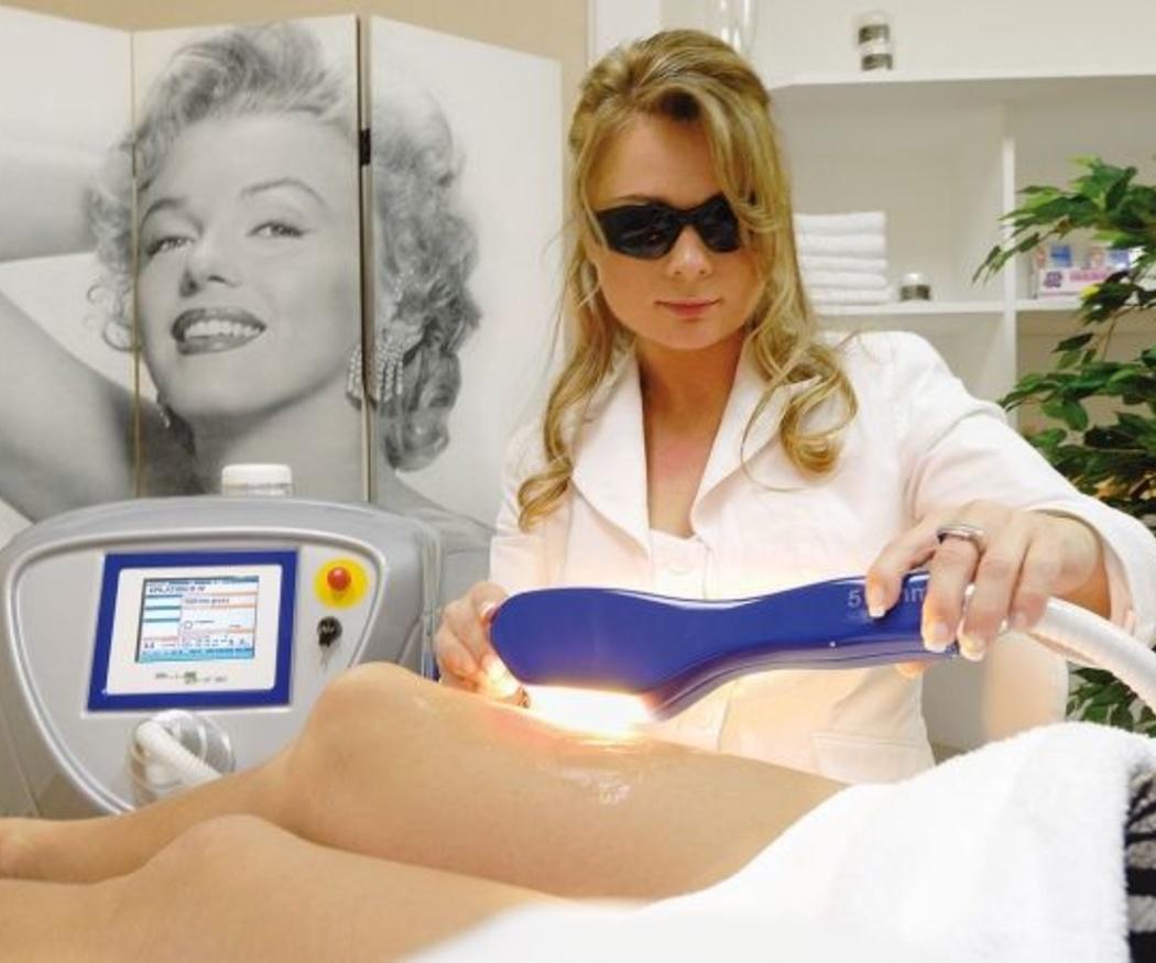 ¿En qué casos se aconseja la depilación con láser de diodo?