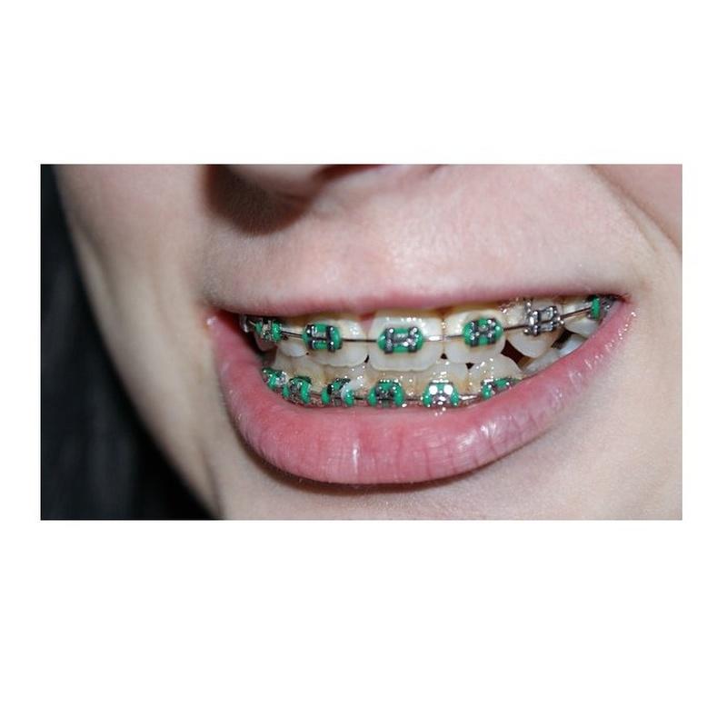 Brackets autoligable: Tratamientos de Clínica Dental Dra. Ana Lucía