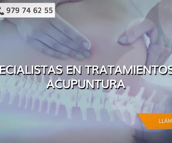 Centros de acupuntura en Palencia: Diezhandino Acupuntura