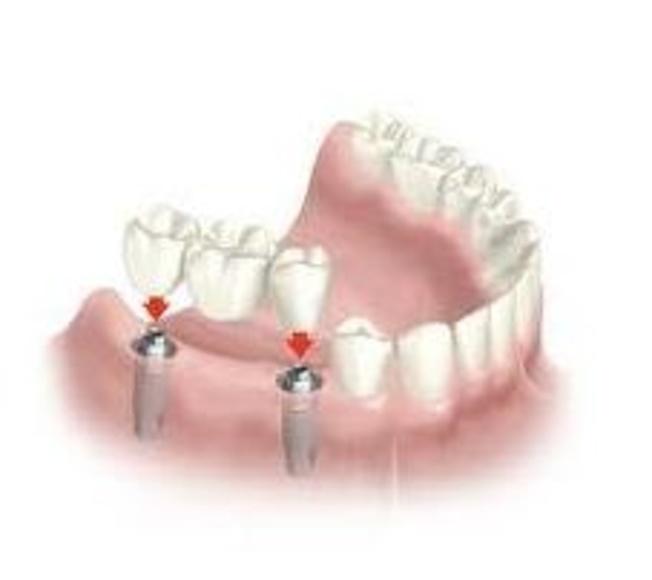 Implantes dentales: Servicios  de Centro Dental Bizkai-Dent