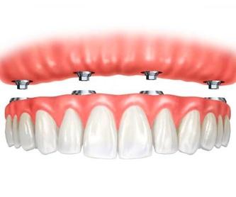 Tratamientos para la periodontitis: Tratamientos de Clínica Dental Les Mèlies
