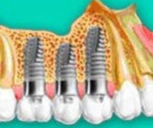 Médico dentista en Barakaldo | Clínica Dental Barakaldo