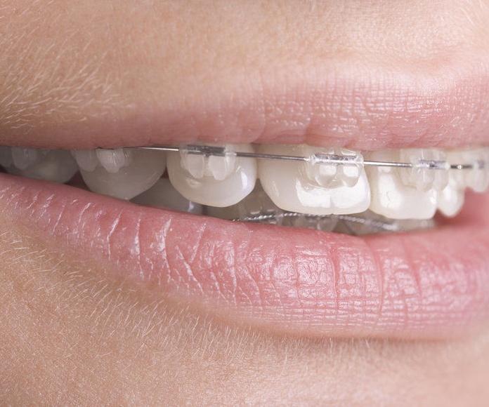 ortodoncia en hortaleza, ortodoncia en canillas.